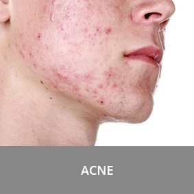 Acne on the skin of a young boy