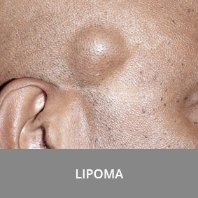 lipoma on the side of the head
