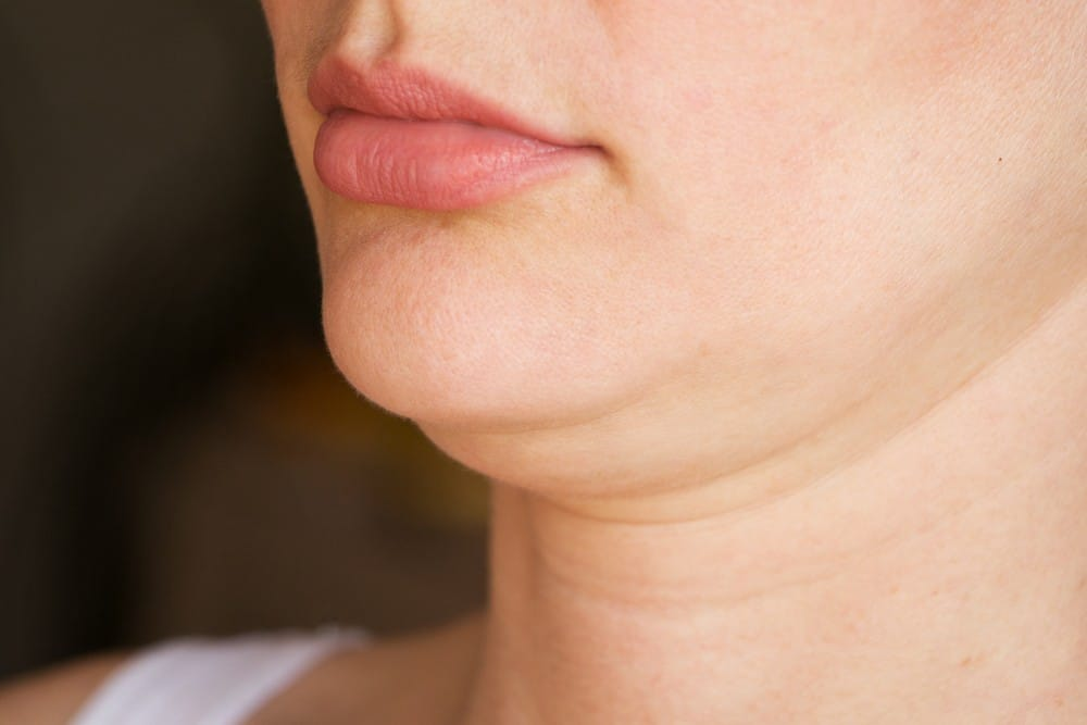 Double Chin treatment at Dr Victoria Skin Clinic in Winchester