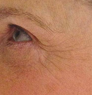 feature image of woman face before Mesotherapy treatment
