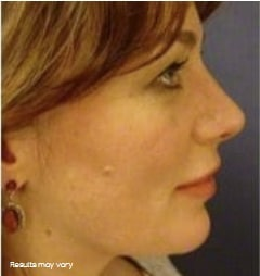 feature image of woman after Silhouette Soft - thread lift treatment