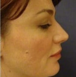 feature image of woman before Silhouette Soft - thread lift treatment