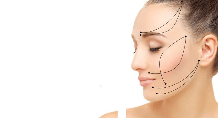 feature image for silhouette soft treatment of woman's profile showing where the skin can be lifted